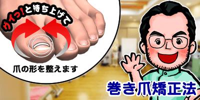 ハイレベル巻き爪矯正法